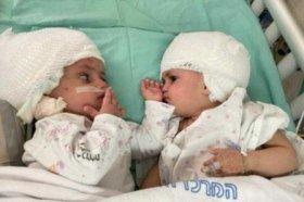 В Израиле успешно провели операцию по разделению сиамских близнецов